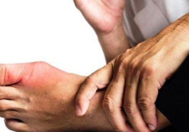 Kenali Gejala Asam Urat (Gout), Penyebab dan Faktor Risiko