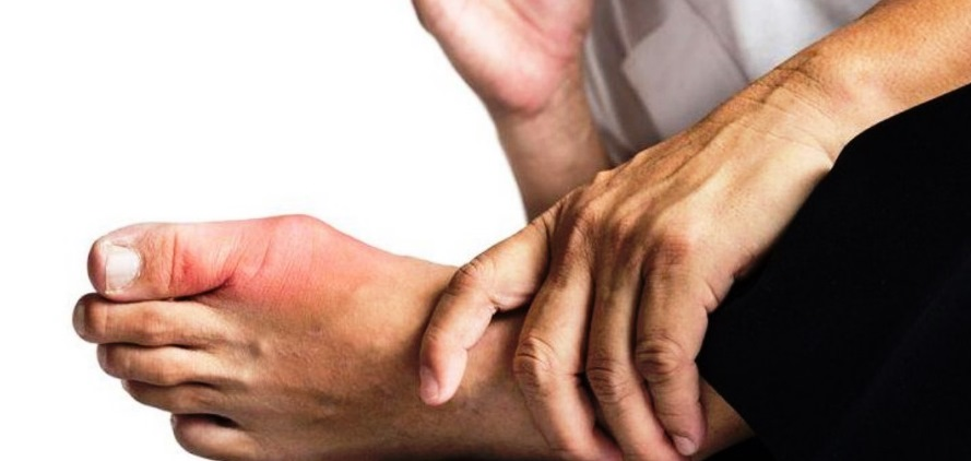 Kenali Gejala Asam Urat (Gout), Penyebab & Faktor Risiko